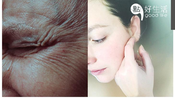 皺紋是如何煉成的?面部小動作原來是皺紋幫兇,整容醫生教你4個非整容抗皺紋方法!